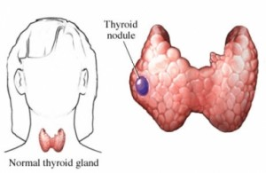 Thyroid-nodules