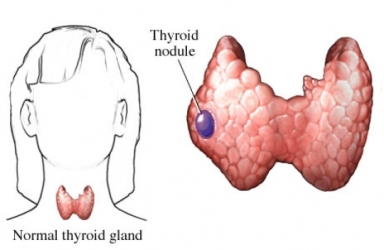 What size would a thyroid nodule need to be to cause concern?