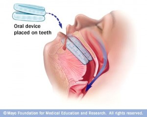 Oral appliance for OSA