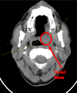 CT showing the left tonsil mass