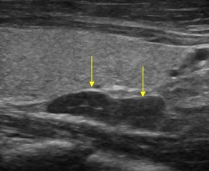 Ultrasound: parathyroid mass is marked by yellow arrows under the paler thyroid gland